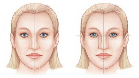 Rhinoplasty | Recovery or postoperative